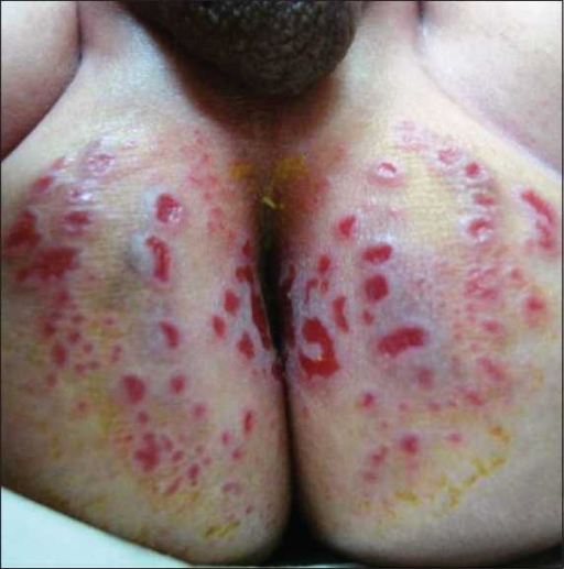triamcinolone acetonide on rash