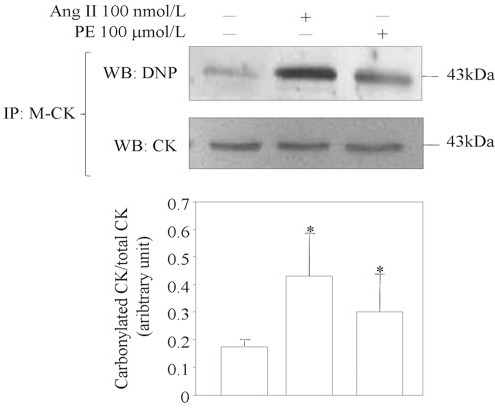 Detection of protein carbonyls after immunoprecipitation of M-CK from cell lysate.HL-1 cells were treated with angiotensin II (AngII) or phenylephrine (PE) for 24 h, and the immunoprecipitates were immunoblotted with anti-DNP and anti-CK. Representative of three independent experiments.