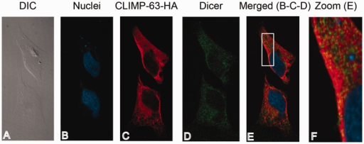 CLIMP-63 co-localizes with Dicer proteins in cultured human cells. HeLa cells transiently transfected with pcDNA-Dicer and pcDNA-CLIMP-63–HA vectors were fixed using formaldehyde (4%) and permeabilized using Triton X-100 (1%). (A) Cells were visualized by differential interference contrast (DIC). (B) Nuclei were stained using 1,5-bis (2-(di-methylamino)ethylamino)-4,8-dihydroxyanthracène-9,10-dione (DRAQ5) (in blue). (C, D) CLIMP-63–HA protein was labeled with a polyclonal anti-HA antibody and a secondary anti-rabbit-IgG coupled to AlexaFluor 546 fluorophore (in red) (C), whereas Dicer protein was labeled using monoclonal anti-Dicer antibody and a secondary murine anti-IgG coupled to AlexaFluor 488 fluorophore (in green) (D). (E) The merged image of panels B, C and D. Panel F represents an enlarged area of the white frame shown in (E). Proteins were visualized using a confocal microscope (Quorum spinning Disc Wave Fx, Quorum Technologies) and a 63X lens.