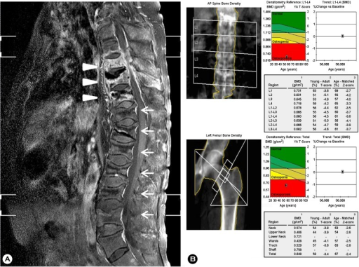 "(A) Sagittal fat-suppressed contrast-enhanced T2 weighted MRI of the spine shows spondylitis of T8, 9, 10 with left paraspinal and anterior subligamentous abscesses (arrow head) and compression fractures at T8 through L5. (B) Low bone mineral density at lumbar spine and left femur is demonstrated, indicating ""osteoporosis"". AP, anteroposterior; BMD, bone mineral density."