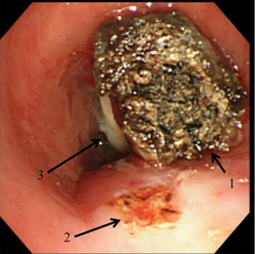 The intraoperative findings: the tumor (arrow 1) was resected by the abrasion of its pedicle, which arose from the tracheal membranous wall (arrow 2). The tracheostomy tube (arrow 3) prevented the tumor from falling into the distal airway.