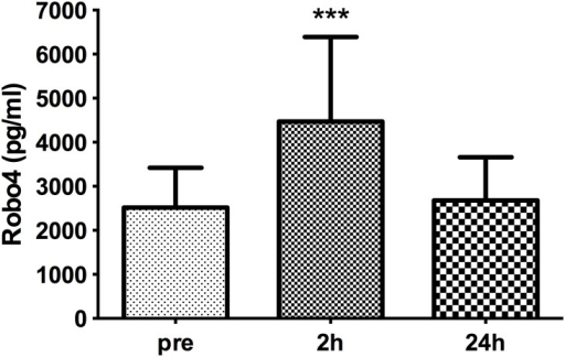 Plasma levels of Robo4 before and after cardiac surgery.Plasma levels of Robo4 increased 2 h post-cardiac surgery requiring cardiopulmonary bypass compared with pre-operative levels and those 24 h post-surgery. Data are presented as bar graphs with mean and SD concentrations (pg/ml) of Robo4; n = 32, ***p<0.001 compared with pre- and 24 h levels.