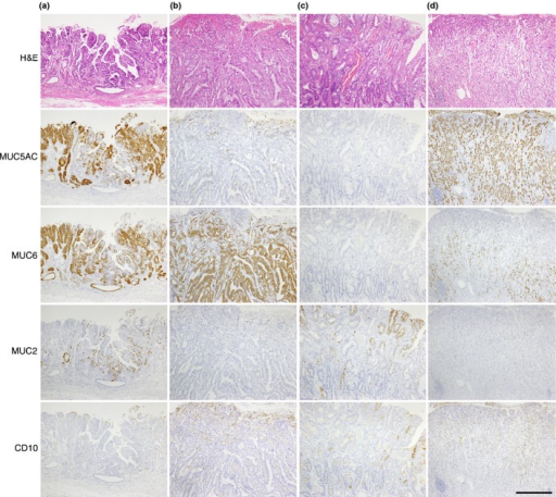 Mucin expression in gastric cancer. (a) MUC5AC-, MUC6-, and MUC2-positive differentiated carcinoma. (b) MUC6-positive differentiated carcinoma. Tumor cells are negative for other markers. (c) MUC2- and CD10-positive differentiated carcinoma. (d) MUC5AC- and MUC6-positive undifferentiated carcinoma. Tumor cells are negative for MUC2 and CD10. Scale bar = 500 μm.