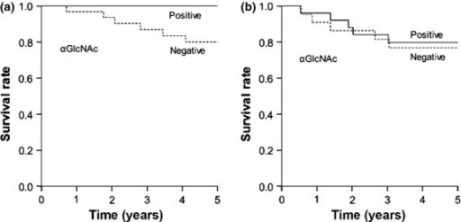 Cancer-specific survival in patients with MUC6-positive gastric cancer based on α1,4-linked N-acetylglucosamine (αGlcNAc) expression. (a) In MUC6-positive differentiated-type adenocarcinoma, patients with αGlcNAc-negative tumors had a significantly poorer outcome than patients with αGlcNAc-positive tumors (P = 0.048). (b) In MUC6-positive undifferentiated-type adenocarcinoma, there was no significant difference between patient survival rate and the presence or absence of αGlcNAc in tumors (P = 0.549).