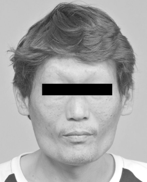 Characteristic face of the AGS case: note the triangular shape, straight nose and pointed chin.