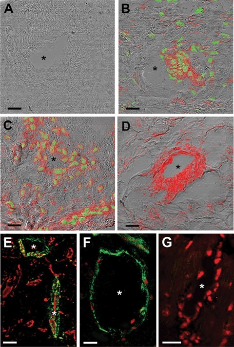 (A–D) Merged confocal fluorescence and differential interference contrast images of sections from control (A), C2C12/GFP-transplanted (B) and C2C12/RLX-transplanted (C, D) hearts. Sections were stained with anti-GFP antibodies (red) to identify the engrafted myoblasts and counter-stained with Syto3 (green) to reveal nuclei (A–C).In (D), the sections were stained with antibodies against the skeletal muscle-specific isoform of a-sarcomeric actin. Myoblast-injected hearts show immunoreactive cells in the post-infarcted zone (B–D), mainly located around blood vessels (asterisks) and scattered within the extracel-lular matrix. No labelled cells can be detected in the controls. C2C12/RLX-implanted hearts contain significantly more GFP-immunoreactive cells than the C2C12/GFP-implanted ones. (E–G) Confocal micrographs of sections from C2C12/RLX-treated hearts, immunostained for V-CAM (E) and ICAM (F, G). Both molecules (green) are expressed by endothelial cells of microvessels in the post-infarcted zones (E, F); by contrast, no ICAM staining is observed in the surrounding viable myocardium. Nuclei are counterstained with propidium iodide (red). Bars = 20 μm.