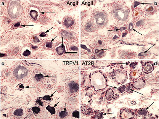IHC in human DRG tissues. Serial sections of post-fixed human avulsion injured DRG immunostained with rabbit antibodies to AngII (a) and TRPV1 (c). Arrows indicate co-localising cells. Similar serial sections of post-fixed human avulsion injured DRG immunostained with antibodies to AngII (b) and AT2R (d). Arrows indicate co-localising cells. Scale bar 50 microns.