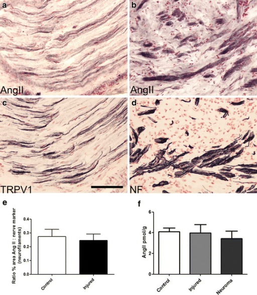 IHC in human nerve tissue. Serial sections of post-fixed human peripheral nerve immunostained with antibodies to AngII (a, b) showing co-localisation with TRPV1 (c) and the structural nerve marker Neurofilament (NF) (d). Scale bar 100 microns. Graph showing image analysis (% area) of AngII immunoreactivity in control (n = 12) and injured (n = 13) nerves expressed as a ratio to the structural nerve marker neurofilaments (e). Graph showing AngII levels by ELISA were similar in control human nerves (n = 31), injured human nerve trunks (n = 7), and painful human neuromas (n = 12) (f).