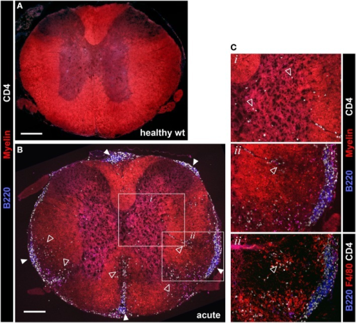Evaluation of spinal cord pathology in 2D2 IgHMOG mice. Mice were sacrificed in the acute phase of disease (<11 days post onset) and spinal cord pathology was evaluated by immunofluorescent histology. Sections were stained for myelin and invading CD4+ T cells and B220+ B cells. [(A) – wild type health control, (B) – 2D2 IgHMOG acute disease]. Infiltrating T cells (open triangles) were evident in the gray matter of diseased mice [see (B) inset box i, shown at higher magnification in (C), top panel]. Clusters containing B220+ B cells and CD4+ T cells (closed triangles) were clearly apparent in the meninges of diseased mice, while no B cells were found in healthy spinal cords [compare (A) with (B)]. Meningeal clusters were often adjacent to areas of demyelination and CD4+ T cell infiltration of the white matter (open triangles). Ongoing parenchymal invasion by T cells and macrophages/activated microglia were clearly evident, associated with regions of demyelination [open triangles, see enlarged image and serial section stained with F4/80, inset box ii, (C)]. Representative images shown (n = 5 wt, n = 5 acute phase 2D2 IgHMOG, minimum three sections taken from different regions of each spinal cord). Scale bars represent 200 μm.