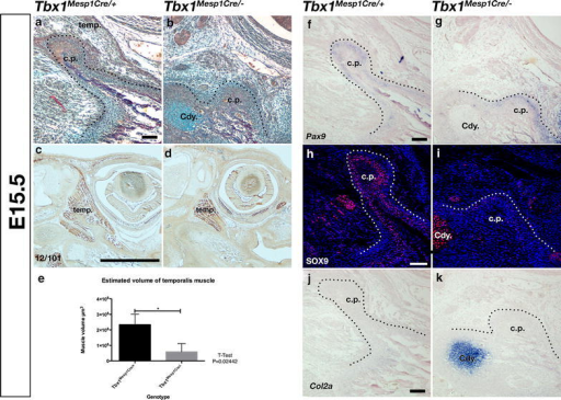 Deletion of Tbx1 in Mesp1 lineage mesoderm results in defect in coronoid process growth. a, b Sirius red/alcian blue trichrome staining of parasagittal section through E15.5 coronoid process of wildtype mouse (a) and residual coronoid process of Tbx1Mesp1Cre/− conditional mutant mouse (b). c, d Immunohistochemistry at E15.5 for muscle using muscle specific 12/101 antibody demonstrates a reduction in size of temporalis of mutant mice (d) compared to wildtype littermates (c) e Comparison of volume of temporalis muscle in µm3, estimated from histological staining (a, b), demonstrated that the temporalis muscle is significantly reduced in mesoderm specific Tbx1 mutants compared with wildtype littermates. f, g In situ hybridisation at E15.5 reveals expression of Pax9 around the coronoid process is unchanged in Tbx1Mesp1Cre/− (g) when compared with wildtype littermates (f). h–k At E15.5 Sox9 is detected by immunofluorescence around the E15.5 coronoid process in wildtype mice (h), whereas in situ hybridisation for Col2a shows that this expression is not associated with cartilage at the coronoid process (j). Sox9 expression is reduced in Tbx1Mesp1Cre/− mutant mouse coronoid process (i), and Col2a expression is not present (k), while expression of both is maintained in the condylar cartilage; cp coronoid process; Cdy mandibular condyle; temp temporalis muscle; Scale bar is 100 µm except c and d where bar is 1000 µm