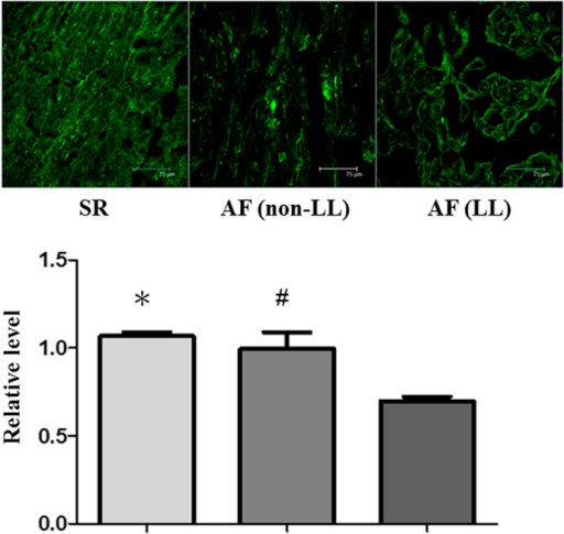 Association of the CCTTT repeat length polymorphisms with myofibril degradation in AF tissues.Representative confocal images show myosin degradation in the atria of seven AF patients (4 non-LL and 3 LL) and two controls (with sinus rhythm [SR]). Relative intensity of MHC in the α-actin-expressing area was quantified as described in the Methods section. Data are expressed as mean ± SE. *P = 0.004, SR versus LL groups. #P = 0.004, non-LL versus LL groups. One-way ANOVA with post hoc Tukey's tests was applied for two groups and multiple comparisons.