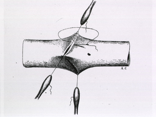 <p>Plate showing Carrel's techniques for vascular anastomosis.</p>