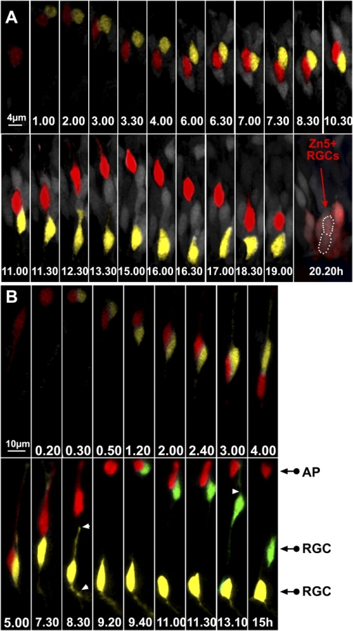 ath5:GFP progenitors generate two RGCs after division in the lakritz environment. (A) The two daughter cells have been highlighted in yellow or red. Time-lapse series showing an example of an ath5:GFP progenitor generating two RGCs in the lakritz environment. Imaging was started at 30–32 h after fertilization, and t = 0 corresponds to the time of appearance of ath5:GFP (4 h after the onset of the video recording). After 11 h, the red daughter cell starts migrating toward the apical surface. Once it has reached the apical surface (t = 15 h), it migrates back again toward the basal surface, where it differentiates in RGCs. The location of both daughter cells after 20 h is outlined by a white dotted line. Both cells were zn-5 positive after immunolabeling of the imaged retina. (B) An example of a time-lapse series showing an ath5:GFP progenitor that divides and generates another dividing progenitor. Imaging was started 30–32 h after fertilization, and t = 0 corresponds to the time of appearance of ath5:GFP (3 h after the onset of the video recording). At t = 9.40 h, the progenitor highlighted in red divides once more at the apical surface, generating one daughter cell (green) that lost its apical process and began to put out an axon and another daughter cell (red) that remained apical. White arrowheads point to the retracting apical process and the forming axon. AP, apical cell; RGC, retinal ganglion cell.
