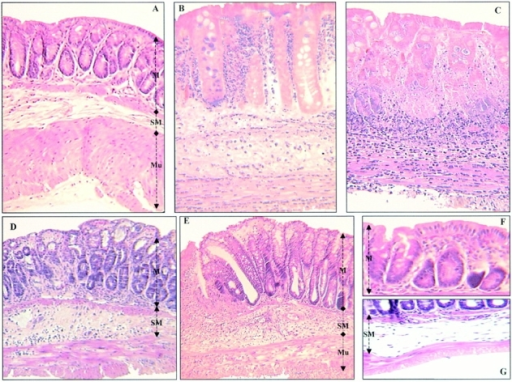 Representative histological sections of colon tissues of Balb/c mice. (A) Normal transparietal colon section of a vehicle-treated mouse with an Ameho score of 0 (×250). The different layers are indicated: M, mucosa; SM, submucosa; Mu, muscular layer. (B) Transparietal colon section (Ameho score 6) 2 d after the induction of colitis by TNBS. Thickening of the colon wall, with a predominant inflammatory infiltrate in the lamina propria, and necrosis extending deeply into the muscular and serosal layers are evident (×400). (C) Transparietal colon section (Ameho score 6) 5 d after the induction of colitis by TNBS. Parietal necrosis extending deeply into the muscular layer with the disappearance of cells in the mucosa is visible (×250). (D) Transparietal colon section of a mouse, which received rosiglitazone before TNBS administration. The mouse was killed 2 d after colitis induction. The Ameho score was graded 2. The picture shows a subepithelial edema with a diastasis of the crypts and a moderate inflammatory infiltrate in the mucosa and submucosa (×250). (E) Transparietal colonic section of mice treated with rosiglitazone after administration of TNBS. The pictures show mice killed 5 d after colitis induction. Ulceration extending into the submucosa, associated with a mucosal, submucosal, and muscular inflammatory infiltrate involving <50% of the specimen, is visible (×250). (F and G) Colon sections of mice that received rosiglitazone before TNBS administration. The mice were killed 2 d after colitis induction. In some cases, a total repair of the mucosa was observed (F; ×600) despite the persistence of an in-depth focal necrosis in the submucosal layer (G; ×400).