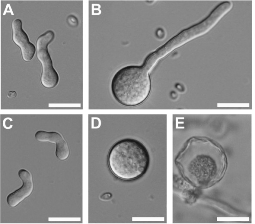 DIC images of spore germination of H. jecorina grown in liquid medium with 1% glucose: (a) QM9414 and (b) RUT C30 and cultires grown under osmotic stress with 10% glucose: (c) QM9414 and (d) RUT C30. (e) Swollwn RUT C30 spores that were unable to germinate underwent autophagic cell death. Bars = 20 μm.