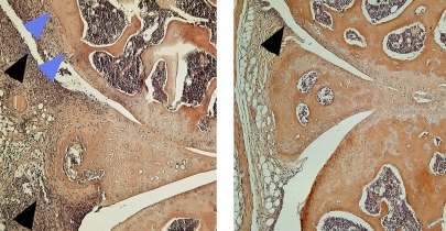Mice lacking DR3 (right) had decreased arthritic inflammation (black arrowheads) and bone erosion (blue arrowheads).