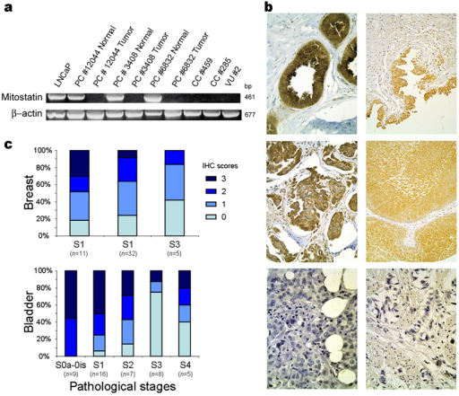 MITOSTATIN is deleted in cancer, mutated in cancer cell lines and its expression is decreased in advanced tumor stages(a) MITOSTATIN ORF was not detected by RT-PCR in three primary prostate tumors (PC), two colon adenocarcinoma (CC) and one carcinoma of the vulva (VU). In the three prostate samples we also studied the normal counterpart in which the gene was normally expressed. (b) Examples of immunohistochemical detection of MITOSTATIN in human breast and bladder. MITOSTATIN cytoplasmatic staining was observed in normal breast (upper left panel) and bladder (upper right panel) human specimens. Normal mammary glands show a very intense MITOSTATIN-staining in both cytoplasm and cellular membrane (upper left panel). Examples of MITOSTATIN positive breast (middle left panel) and bladder (middle right panel) cancers and negative breast (lower left panel) and bladder (lower right panel) tumors. (X400). (c) MITOSTATIN immunohistochemical expression is decreased in advanced stages in breast and prostate. The distribution of the immunohistochemical scores in the different tumor stages is shown. Original magnifications 10x, 20x and 40x.