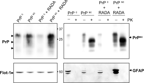 Prion and GFAP proteins are increased in brain homogenates from hamsters inoculated with Scrapie+RADA.Total PrP protein was detected by Western blot in hamster brain homogenates (20 µg/lane) from normal (PrPc; 75 d), Scrapie infected (PrPsc; 75 d), normal combined with RADA (PrPc+RADA; 115 d), and Scrapie combined with RADA (PrPsc+RADA; 115 d). A prominent PrP band was detected at ∼30 kDa and two lower molecular weight bands at ∼22 kDa and 19 kDa (top left panel). Flotillin-1 (Flot-1) was used as a loading control and a doublet was detected at ∼45 kDa (bottom left panel). Digestion of brain homogenates with proteinase-K (+PK) demonstrated the presence of prion protein in the PrPsc and PrPsc+RADA samples, but not in PrPc or PrPc+RADA. A detectable MW shift was observed for PrPsc in all three bands with a shift from 30 kDa to 25 kDa occurring for the predominant band (top right panel). A notable increase in PK-resistant prion was detected in the PrPsc+RADA compared to the PrPsc alone. Detection of GFAP was used to verify the complete PK-digestion of samples (bottom right panel). Three detectable GFAP bands were resolved (∼50, 45 and 40 kDa) in the non-PK treated samples with increased detection of GFAP in PrPsc+RADA brain.