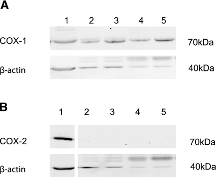 Western blot analysis of COX immunoreactivity in mouse bronchi. Tissue extracts of mouse bronchi contained immunoreactivity for COX-1 (A) with little or no detectable COX-2 (B). Positive (+ve) controls were extracts of MEG01 cells (22) for COX-1 and LPS-stimulated J774 cell extract (11) for COX-2. Blots were subjected to immune staining for β-actin as an indicator of protein loaded. Lane 1, positive control; lanes 2, 3, bronchi from wild-type mice; lanes 4, 5, bronchi from COX-1−/− mice. Similar results were obtained using tissue from a total of 3 or 4 mice.