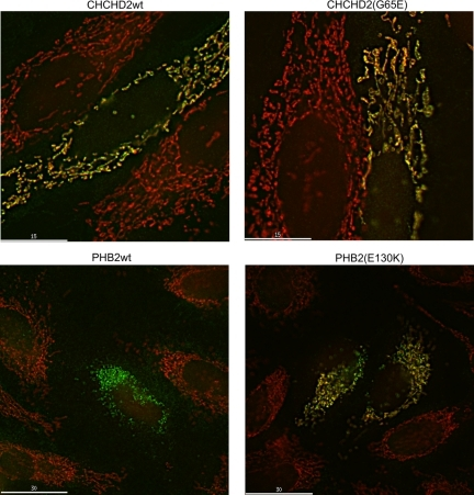 PHB-2 and CHCHD2 (Har-1) mutants localize to mitochondria. Hela cells were transfected with plasmid expression vectors expressing myc-tagged human PHB-2, human PHB-2(E130K), CHCHD2 (the human ortholog of Har-1), and CHCHD2(G65E). After 18 h cells were stained with MitoTracker Red, fixed, and stained with anti-myc antibody (green). PHB2 is known to localize to and CHCHD2 suspected of localizing to mitochondria. Each of the mutants also colocalized with the MitoTracker Red. In some cells such as the one shown for PHB-2 wild type, the myc-staining pattern resembled MitoTracker staining, but no MitoTracker was visible in the cells.