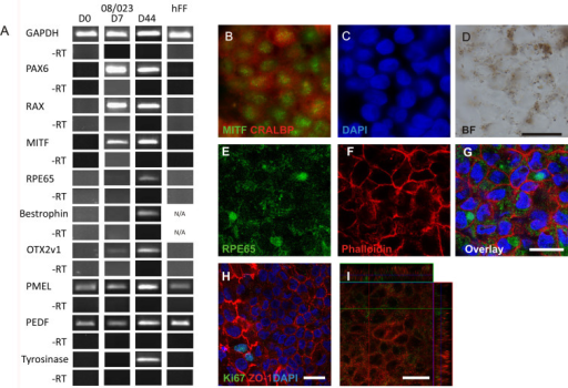 Differentiation of human pluripotent stem cells toward retinal pigment epithelium (RPE) cells under defined culture conditions, RPEregES. All represented images are from human embryonic stem cell (hESC)-RPE Regea 08/023. A: Reverse transcription (RT)–PCR analysis of typical genes for retinal/ RPE development expressed by undifferentiated hESC (Regea 08/023), human foreskin fibroblast (hFF) feeder cells, and putative hESC-RPE on D7 and D44. Expression of B: Microphthalmia-associated transcription factor (MITF), B: Cellular retinaldehyde-binding protein (CRALBP), and E,G: RPE65 on D83. F: For cell morphology, F-actins were stained using phalloidin. H: Proliferative activity was studied by Ki67 staining together with tight junction protein anti-zonula occludens (ZO)-1 in hESC-RPE. I: Vertical confocal sections showing apical localization of Na+/K+ATPase (green) and basolateral localization of Bestrophin (red). Nuclei stained with 4',6-diamidino-2-phenylindole (DAPI). Images B-D were taken with an Olympus BX60 microscope (Olympus, Tokyo, Japan) using a 60× oil immersion objective, scale bar 20 μm. Images E-I were taken with an LSM 700 confocal microscope (Carl Zeiss) using a 63× oil immersion objective, scale bar 20 μm.