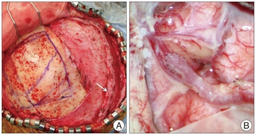 Intraoperative photograph illustrating the preparation of the right STA (arrow) (A), and anastomosis between cortical branch of the ACA and parietal branch of the STA (B). ACA : anterior cerebral artery, STA : superficial temporal artery.
