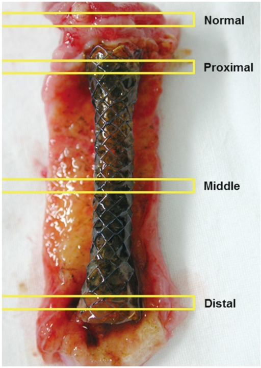 Four levels of histopathological examination. Cross section of an unstented (normal) bile duct, and the proximal, middle, and distal portions of the stented bile duct.