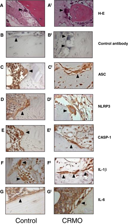 Expression of inflammasome components and IL-6 in bone biopsies from CRMO patients and from one tissue control. Representative immunohistochemical staining of decalcified human bone biopsy specimens from a tissue control (A-B-C-D-E-F-G) and patients with CRMO (AI-BI-CI-DI-EI-FI-GI). Bone sections were stained with hematoxylin-eosin, a secondary antibody only or with primary antibodies as indicated. Magnification: X63. Arrows: osteoclasts.