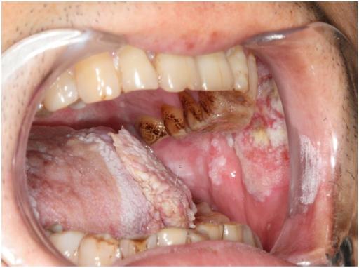 Erkrankungen der Mundhöhle und des Rachens (Oropharynx)
