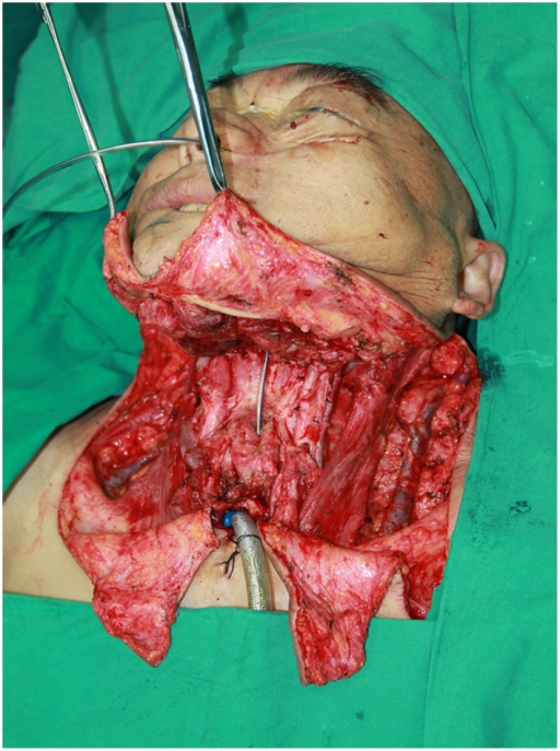 thyroidectomy-and-neck-dissection-pictures-to-pin-on-pinterest ...
