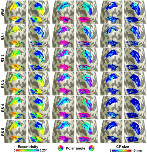 Visualization of connective field maps for a single subject. From left to right: eccentricity, polar angle, and size. Top panel corresponds to visual field mapping (VFM)-based estimates. Lower panels show parameter estimates for each resting state (RS) scan. For V1 ➤ V2 CF models, the position displacement in CF cortical location (in mm) between VFM- and RS-based estimates for RS1 to RS5 is: median (MAD) = 10.0 (5.4); 8.5 (5); 5.8 (3.7); 3.8 (3.4); and 4.1 (3.0), respectively [total = 5.4 (3.9)]. Corresponding position displacement values between RS4 and RS5 (the RS scans with lowest displacement: 4.1 (3.1); between RS1 and RS2 (the RS scans with highest displacement): 8.5 (5.8); between RS1 and RS4: 10.5 (6.6); when grouping results for all RS scan pairs: 8.6 (5.9). For V1 ➤ V3 CF models, the corresponding values are: 13.6 (6.3); 14.4 (6.8); 7.9 (5.4); 6.7 (5.5); and 7.1 (4.2) [total = 8.7 (5.5)]. Eccentricity and polar angle are inferred from V1 pRF mapping (see Materials and Methods for details). Data are for V1 ➤ V2 and V1 ➤ V3 models estimated for subject 3 (data for other subjects included in Supplementary Materials). A threshold of 0.35 VE was applied. Median cortical displacements reflect the agreement between RS and VFM maps and between different RS maps.