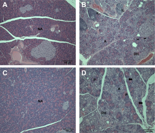 Histopathological changes in the pancreas after treatment with (A and B) ZnOAE100(−) and (C and D) ZnOAE100(+) at a dose of 500 mg/kg for 90 days. The pancreas sections were stained with hematoxylin and eosin. (A and C) Control for acinar cell. (B and D) 500 mg/kg treatment groups.aNotes:aArrows in (B and D) represent acinar cell apoptosis in the pancreas.Abbreviations: A, chronic inflammation; DH, ductular hyperplasia; IL, interstitial lymphoid cell infiltration; NA, normal acinar cell; P, prominent acinar cell; ZnO, zinc oxide; ZnOAE100(−), 100 nm negatively charged ZnO; ZnOAE100(+), 100 nm positively charged ZnO.