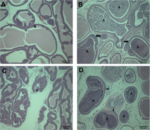 Histopathological changes in the prostate gland after treatment with (A and B) ZnOAE100(−) and (C and D) ZnOAE100(+) at a dose of 500 mg/kg for 90 days. Prostate gland sections were stained with hematoxylin and eosin. (A and C) Control for the prostate gland tubule. (B and D) 500 mg/kg treatment groups.aNote:aArrows in (B and D) show tubular hyperplasia in the prostate gland.Abbreviations: A, suppurative inflammation, N, normal tubule; ZnO, zinc oxide; ZnOAE100(−), 100 nm negatively charged ZnO; ZnOAE100(+), 100 nm positively charged ZnO.