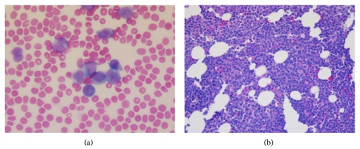 (a) Peripheral smear revealing blasts that contained bilobed nuclei with very fine granules (100x). (b) Bone marrow biopsy showing a hypercellular marrow with 64% blasts and decreased trilineage hematopoiesis (40x).