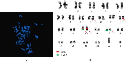 (a) Metaphase FISH: dual-color dual-fusion FISH probe has one fusion, two orange (PML) and two green (RARA) signals on representative metaphase nuclei. (b) Illustration of positions of FISH probes based on several DAPI (as in (a)) and reverse DAPI (not shown) metaphase studies confirming the complex translocation: t(9;17;15;12;15)(q34;q21;q24;q13;q26.1).