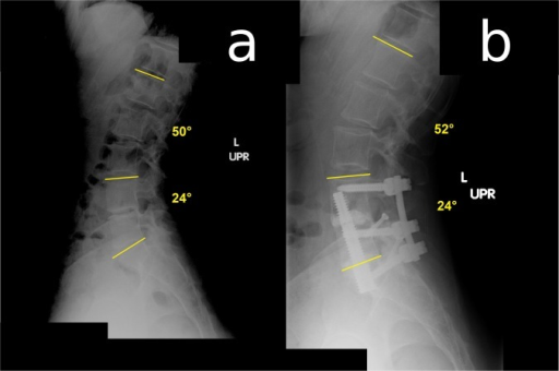 Lateral standing radiograph showing a) lordosis of 24° at L4-S1 and 50° at L1-S1 at pre-treatment, and b) 24° L4-S1 and 52° L1-S1 lordosis 2 years after two-level axial lumbar interbody fusion.
