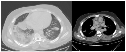 Consolidation areas in the lower lobe of right lung, upper-lower lobe of left lung, and lingula were observed in first drawn contrast enhanced computed tomography.