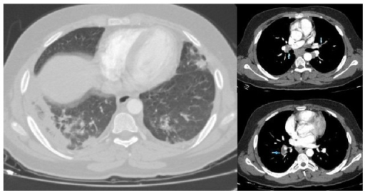 PTE was detected on the right main pulmonary artery and left pulmonary artery branches and consolidation areas in bilateral lower lobe and areas of ground glass in the upper and lower lobes in computed tomography pulmonary angiography.