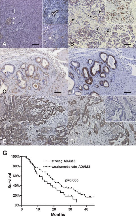 ADAM8 expression and localization in the normal pancreas, CP and PDAC tissues: Immunohistochemistry was performed as described in the 'Materials and methods' section. (A) ADAM8 expression in normal pancreatic islets (arrows) and acinar cells and ductal cells (lower inset). Consecutive section stained with CK19 confirming ductal cells (upper inset). (B) ADAM8 expression in CP tissues (arrows indicate tubular complexes). Consecutive section stained with CK19 confirming ductal cells/tubular complexes (inset). (C, D) ADAM8 (C) and CK19 (D) staining in pancreatic cancer cells of PDAC tissues. (E, F) Strong ADAM8 staining in pancreatic cancer cells of PDAC tissues. Note the absent staining in a consecutive negative control tissue section (inset). Horizontal lines represent the scale bar of 50 μm. (G) Survival curves of PDAC patients (n = 99) with weak/moderate ADAM8 staining versus strong ADAM8 staining (P= 0.065).