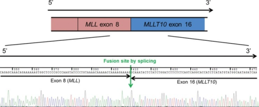 Identification of the MLL/MLLT10 fusion transcript in acute myeloid leukemia. Sequencing analyses confirmed that the transcript was from MLL (exon 8)-MLLT10 (exon 16) rearrangement.Abbreviation: MLL, mixed lineage leukemia gene.