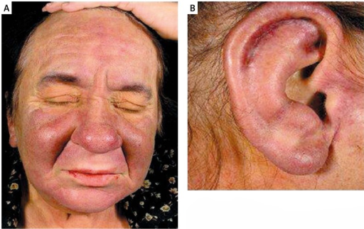 Confluent skin infiltration on the face (A) and the ear (B)