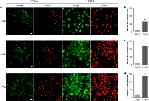 Quantitative analysis of vimentin upon TGF-β treatment.(a) Live-cell images of A549_VB6-CB cells left untreated (−TGF-β) or stimulated with TGF-β (5 ng/ml) for the indicated time periods. Shown are raw data images (image) and the respective segmentation of vimentin fibers (mask). Scale bars: 20 μm. (b–d) Quantification of vimentin fibers in >100 cells after treatment with TGF-β for 24 h (b), 48 h (c) and 72 h (d). Values represent the means ± s.e.m. of three independent experiments. For statistical analysis student's t-test was used, **P < 0.01, ***P < 0.001.