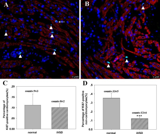 Proliferation of iVSD cardiomyocytes analyzed via confocal microscopy.Confocal microscopy of tissue sections using Ki67 and troponin indicate that non-cardiomyocyte cell proliferation is decreased in iVSD tissues compared to controls. (A) Representative Ki67-positive cells in normal hearts. (B) Representative Ki67-positive cells in iVSD hearts. (C) Quantification of Ki67-positive cardiomyocytes. (D) Quantification of Ki67-positive non-cardiomyocytes (iVSD group: n = 20; control group: n = 6. Data presented as means ± SD; ***p<0.001. Cardiac troponin T (red), Ki67 (green), and DAPI (blue) staining are shown. Arrow indicates proliferating cardiomyocytes and the triangle indicates non-cardiomyocytes.