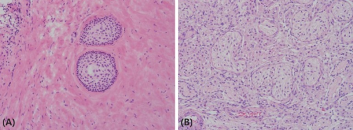 (A) Resected left testicular mass revealed a mature teratoma. The nodule in the testis showed mature squamous cell nests in the fibrotic stroma (H&E, ×200). (B) The testicular parenchyme showed atrophic seminiferous tubule without germ cells. The hyperplastic Leydig cells were noted (H&E, ×200).