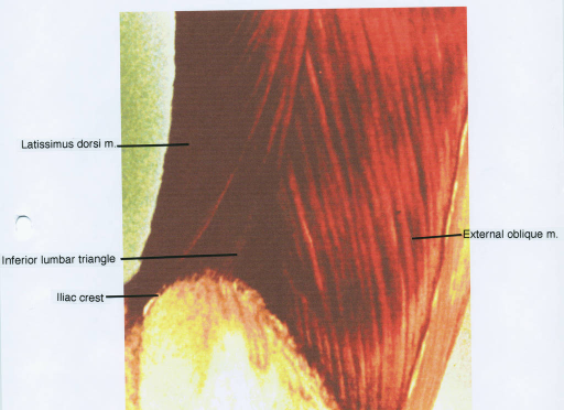 latissimus dorsi muscle; inferior lumbar triangle; iliac crest; external oblique muscle
