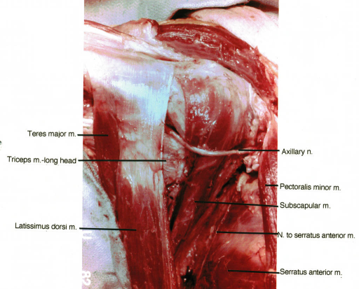 teres major muscle; triceps muscle; latissimus dorsi muscle; axillary nerve; pectoralis minor muscle; subscapularis muscle; serratus anterior muscle; serratus anterior muscle, nerve to; long thoracic nerve