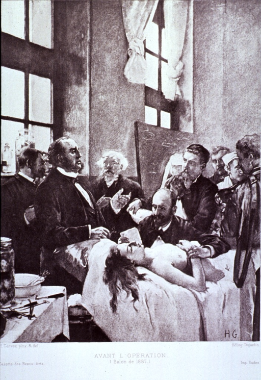 <p>View of a half-naked women on a table surrounded by physicians.  Dr. Pean is in the foreground.</p>
