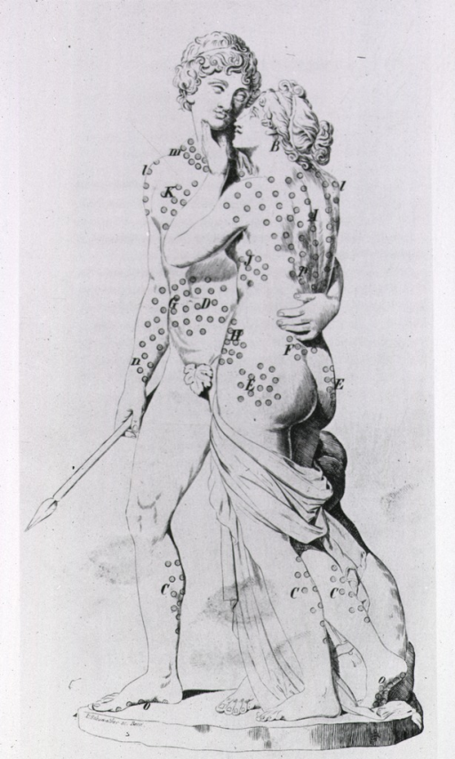 <p>Statues of Venus and Adonis, their bodies covered with circles, pointing out proper puncture points for Baunscheidt's Lebeswecker.</p>