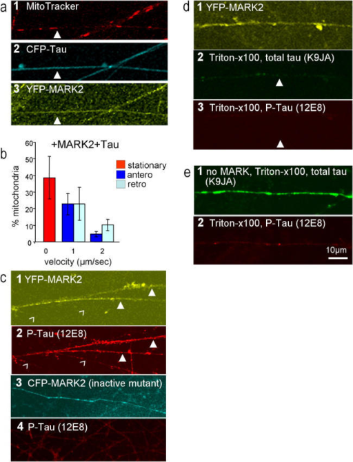 Recovery of anterograde movements of mitochondria by coexpression of tau and MARK2. (a,1–3) Axons of RGCs stained for mitochondria (MitoTracker, a 1), CFP-tau (a 2), YFP-MARK2 (a 3). Numerous mitochondria are present in axons, in spite of the presence of tau, because the phosphorylation of tau by MARK detaches it from microtubules and facilitates transport (closed arrowheads). (b) Velocity histogram of mitochondria. Note the substantial recovery of anterograde transport (dark blue bars) after coexpression with MARK2 (compare with Fig. 5 k, transfection of tau only). Error bars indicate SEM. (c, 1–4) Axons showing YFP-MARK2 (c 1) and phospho-Tau (at KXGS motifs, antibody 12E8, c 2, closed arrowheads). Axons after transfection with inactive CFP-MARK2 (c 3), which fails to increase the phosphorylation of KXGS motifs of tau (c 4, antibody 12E8 shows only background staining). (d, 1–3) Axons after transfection of cells with YFP-MARK2 (d 1) and then extracted with Triton X-100 and stained for total Tau (antibody K9JA, d 2) phospho-Tau (antibody 12E8, d 3). Note that Tau phosphorylated at KXGS motifs disappears because it is not attached to microtubules (closed arrowheads). (e, 1 and 2) Axons not transfected with MARK, extracted with Triton X-100, show strong staining with Tau (K9JA, e 1) but not with phospho-Tau (12E8, e 2).