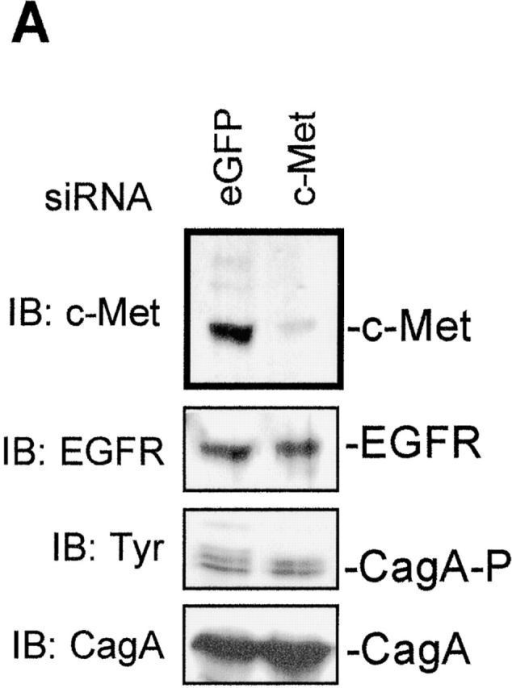 c-Met receptor expression is essential for H. pylori– induced motogenic response in epithelial cells. HeLa cells were transfected with siRNA to c-Met or with siRNA to EGFP (as a control for the effect of transfection). After culturing for 72 h, cells were infected with the H. pylori strain P1 for 6 h. The siRNA to c-Met efficiently silenced c-Met receptor expression analyzed in a Western blot (A, top). Silencing of c-Met expression had no effect on EGFR expression (second panel) and phosphorylation (third panel) of translocated CagA protein (bottom). (B) Cells were transfected with c-Met siRNA and infected with the wild-type H. pylori strain P1. Cells are shown by phase-contrast microscopy (top two panels) or stained with immunofluorescence using c-Met antibody. Actin filaments were visualized with rhodamine-conjugated phalloidin. (C) HeLa cells transfected with c-Met siRNA are resistant to the induction of the motogenic response by H. pylori. Phase-contrast of cells transfected with siRNA to c-Met or siRNA to EGFP.
